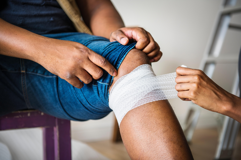 varizes-podem-provocar-eczema-angioplastica